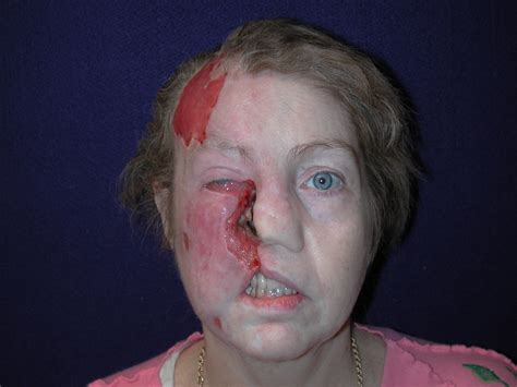 Trigeminal Trophic Syndrome: Case Report and Review of the