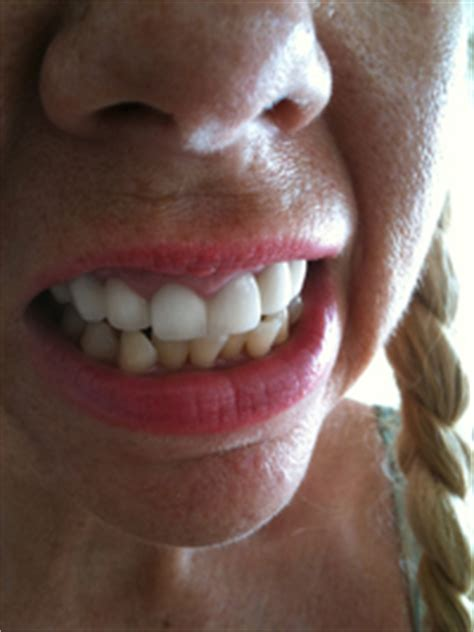 Bulimia Rots Your Teeth stop now before its too late