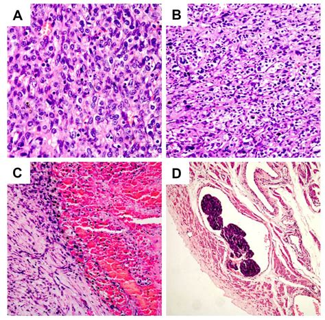 Benign and malignant ovarian steroid cell tumors, not